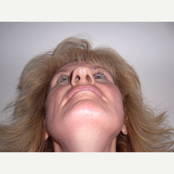 45-54 year old woman treated with Rhinoplasty before 3122828