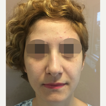 25-34 year old woman treated with Rhinoplasty before 3522494