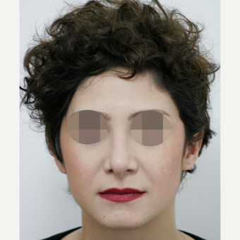 25-34 year old woman treated with Rhinoplasty after 3522494