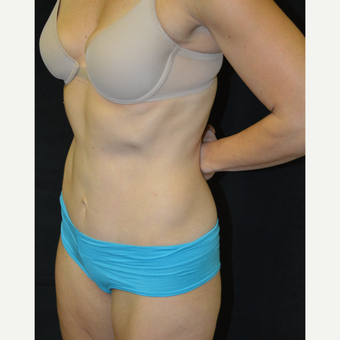 35-44 year old woman treated with Tummy Tuck after 3181884