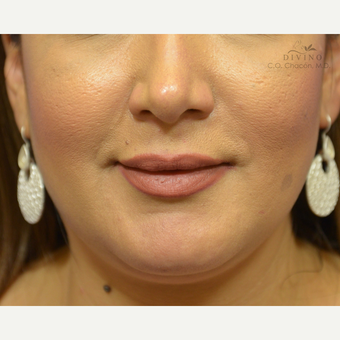 35-44 year old woman treated with Lip Augmentation after 3392032