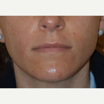 25-34 year old woman treated with Restylane after 3577775