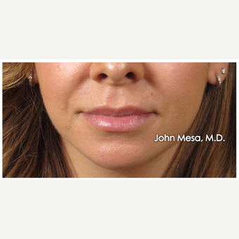 25-34 year old woman treated with Restylane for Lip Augmentation before 3059020