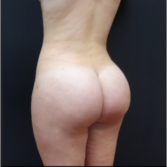 18-24 year old woman treated with Fat Transfer after 3315540