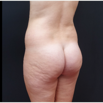 18-24 year old woman treated with Fat Transfer before 3315540