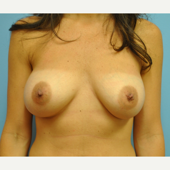 38 year old woman treated with Breast Augmentation, C to D cup after 3422743