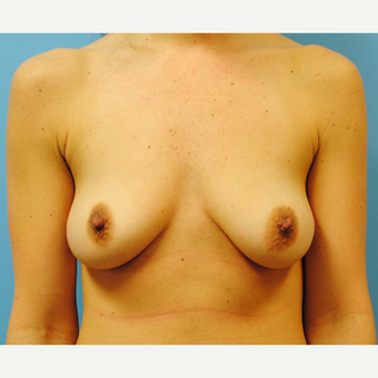 38 year old woman treated with Breast Augmentation, C to D cup before 3422743