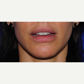 Lip filler after 3128067