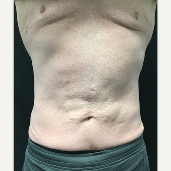 45-54 year old man treated with CoolSculpting after 3684573