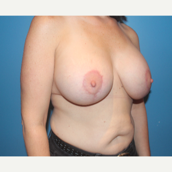 35-44 year old woman treated with Breast Lift with Implants after 3771512
