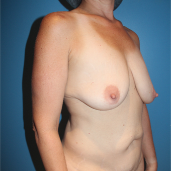 35-44 year old woman treated with Breast Lift with Implants before 3771512
