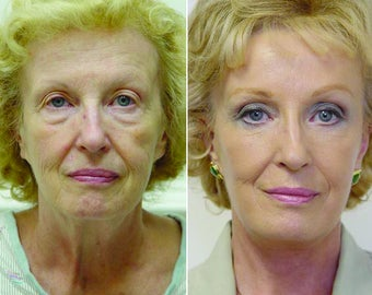 60 Y.O Woman Eyelid Surgery and Facelift before 1373988