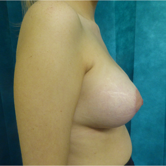25-34 year old woman treated with Breast Lift after 3427950