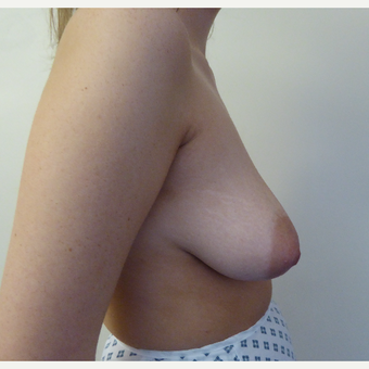 25-34 year old woman treated with Breast Lift before 3427950