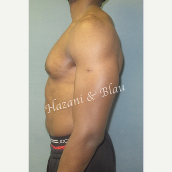 35-44 year old man treated with Male Breast Reduction after 3333021