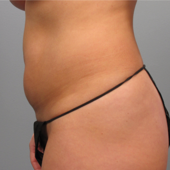 25-34 year old woman treated with Liposuction before 3452854