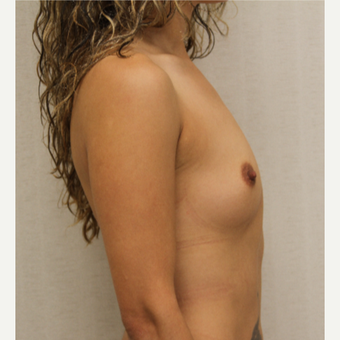 25-34 year old woman treated with Breast Augmentation before 3695634