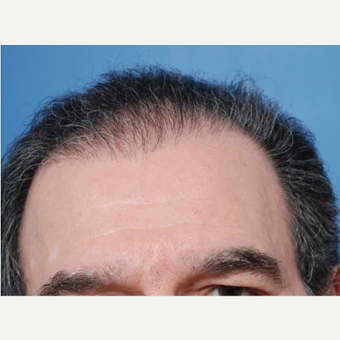 65-74 year old man treated with 2 sessions of Hair Transplantation before 3577751