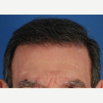 65-74 year old man treated with 2 sessions of Hair Transplantation after 3577751