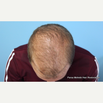 24 year old man treated with FUE Hair Transplant before 3788582