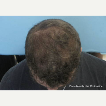 24 year old man treated with FUE Hair Transplant after 3788582