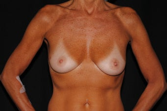 55 year old woman concerned with loss of breast tissue and shape  before 1172881