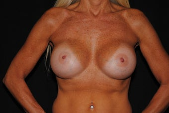 55 year old woman concerned with loss of breast tissue and shape  after 1172881