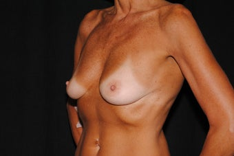55 year old woman concerned with loss of breast tissue and shape  1172881