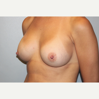 25-34 year old woman treated with Breast Augmentation after 3569620