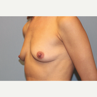 25-34 year old woman treated with Breast Augmentation before 3569620