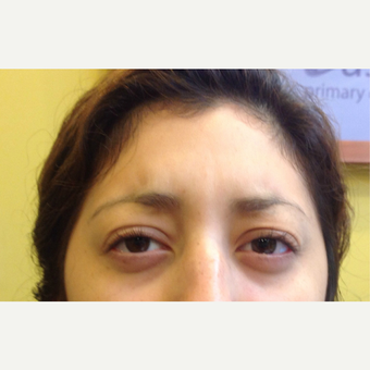 18-24 year old woman treated with Xeomin after 3725088