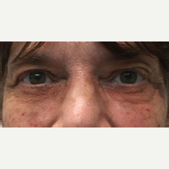 65-74 year old woman treated with Restylane after 3255733