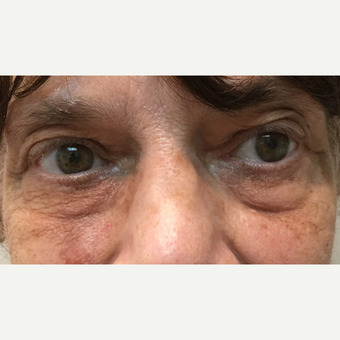 65-74 year old woman treated with Restylane before 3255733