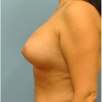 34 year old.  Silicone implants.  Right 365, left 415 after 3344670