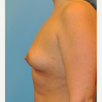 34 year old.  Silicone implants.  Right 365, left 415 before 3344670