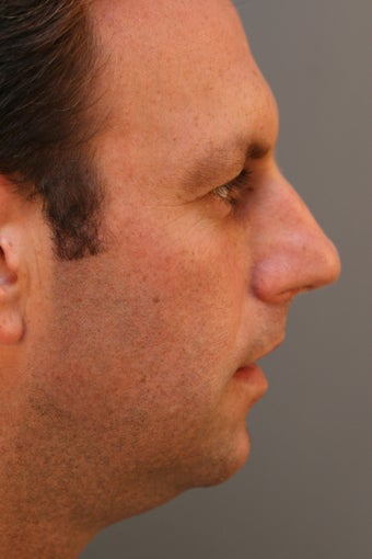 Male Chin Implant before 831909