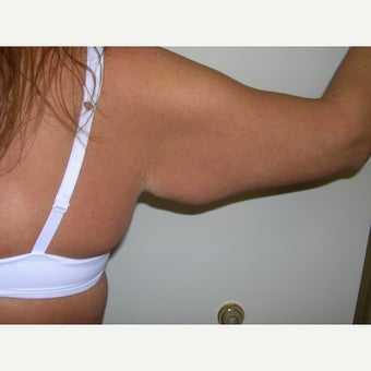25-34 year old woman treated with Arm Lift before 2375693