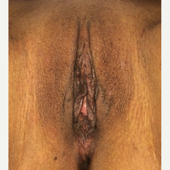 25-34 year old woman treated with Labiaplasty after 3055781