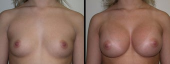 Breast Augmentation before 1231977