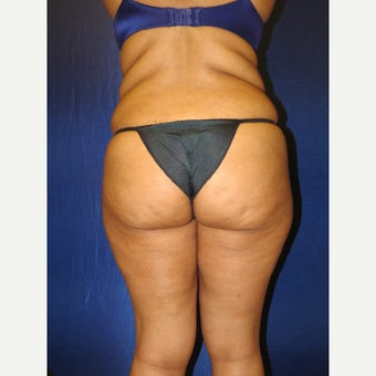 35-44 year old woman treated with Brazilian Butt Lift before 3136120