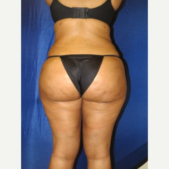 35-44 year old woman treated with Brazilian Butt Lift after 3136120