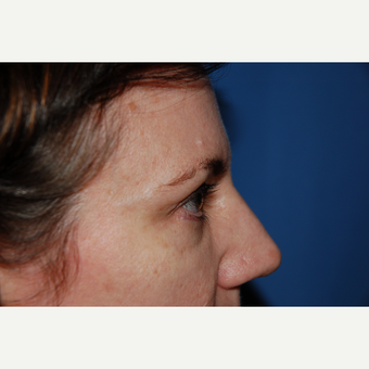 35-44 year old woman treated with Eyelid Surgery after 3782058