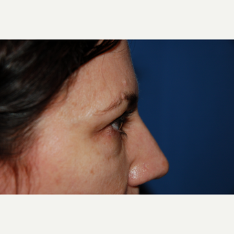 35-44 year old woman treated with Eyelid Surgery before 3782058