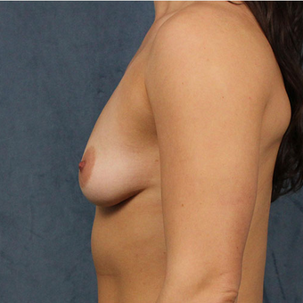 Mentor Breast Implants before 3033607