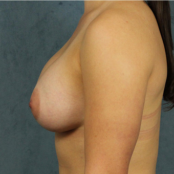 Mentor Breast Implants after 3033607