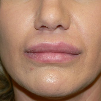 35-44 year old woman treated with Lip Augmentation using Alloderm