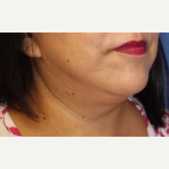 61 year old woman with neck liposuction after 3775967
