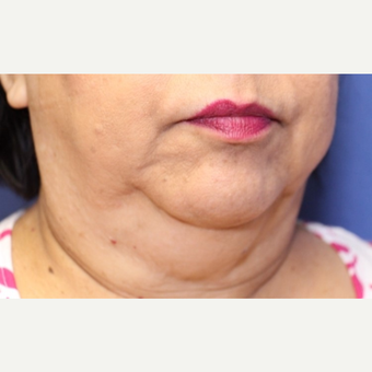 61 year old woman with neck liposuction before 3775967