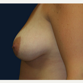 25-34 year old woman treated with Breast Lift with Implants before 3520117