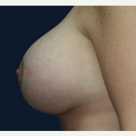 25-34 year old woman treated with Breast Lift with Implants after 3520117